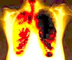Barbara: modląc się o zdrowie szwagra u którego podejrzewano nowotwór płuc